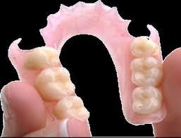 Protesi flessibile F.J.P pressing dental